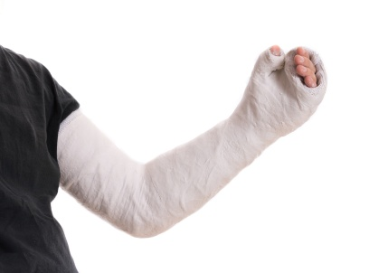 Young man wearing a long arm plaster / fiberglass cast